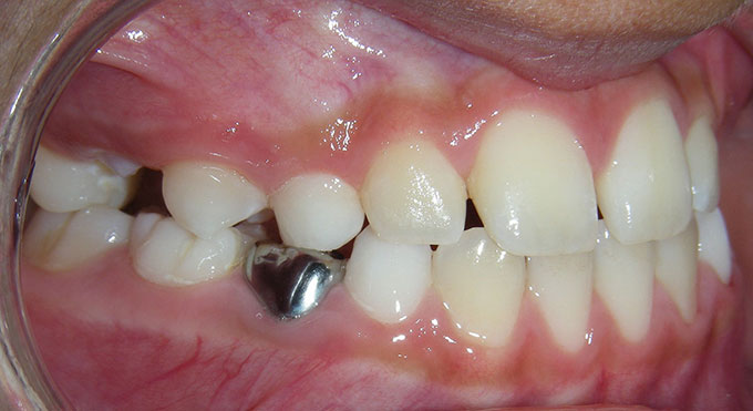 Teeth side view after treatment which consisted of an upper removable plate for 12 months